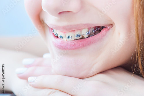 Teeth with braces. - 104213779