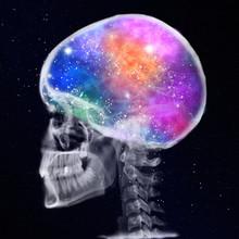 Rtg Of Human Skull With Galaxy
