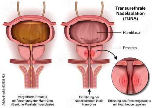 prostatahyperplasie operation A végbél és a prosztata gyulladása