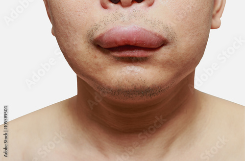 The skin around the mouth caused by an allergic reaction to medication Canvas Print