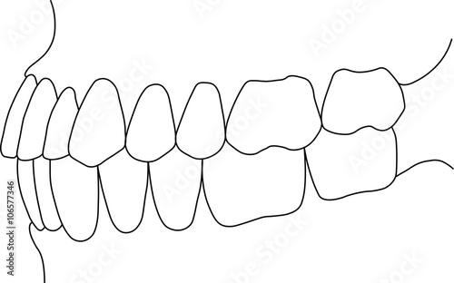 Fotografie, Tablou  dental bite