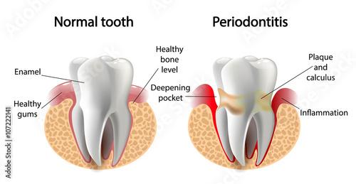 Fotografia  vector image tooth  Periodontitis disease