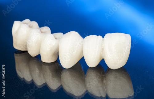 Fototapeta Metal free ceramic dental crowns