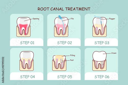 Valokuva  cartoon tooth root canal treatment