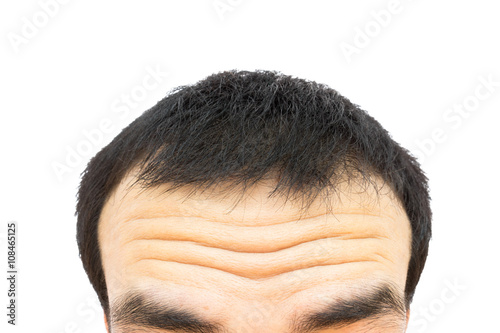 Fotografering  Closeup wrinkles on forehead young man