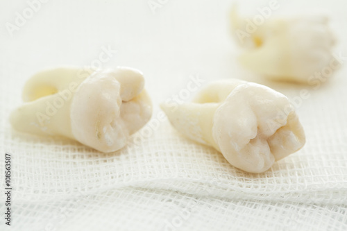 Stampa su Tela Removed wisdom tooth on white