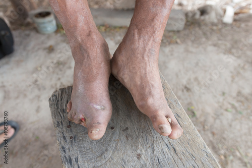 Hansen's disease,closeup hands of old man suffering from leprosy Canvas Print