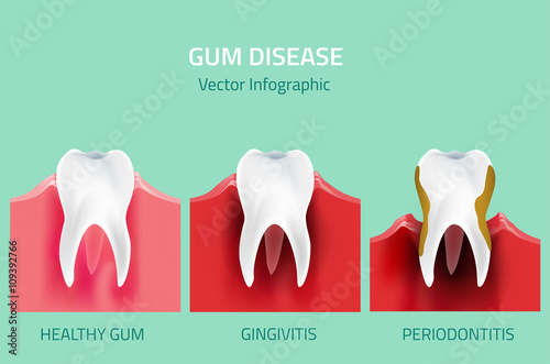 Fotografia  Gum disease stages. Teeth infographic