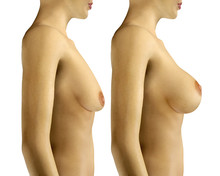 3d Illustration Breast Enlarge...