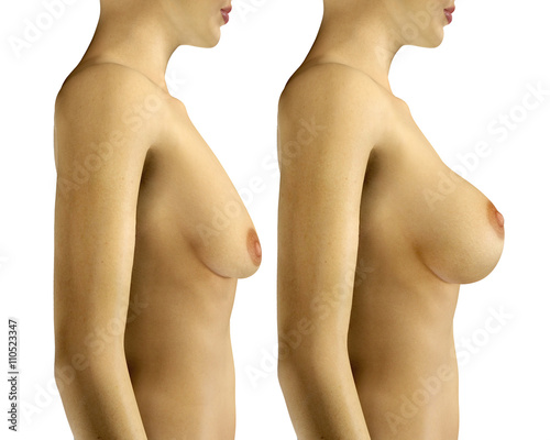 Fototapeta 3d illustration Breast Enlargement with Uplift surgery  before a