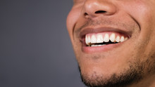 Healthy Teeth Of A Male As He ...