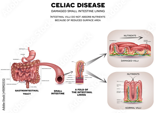 gastrointestinal tract anatomy and celiac disease affected small celiac vs normal gastrointestinal tract anatomy and celiac disease affected small intestine villi unhealthy villi with damaged cells