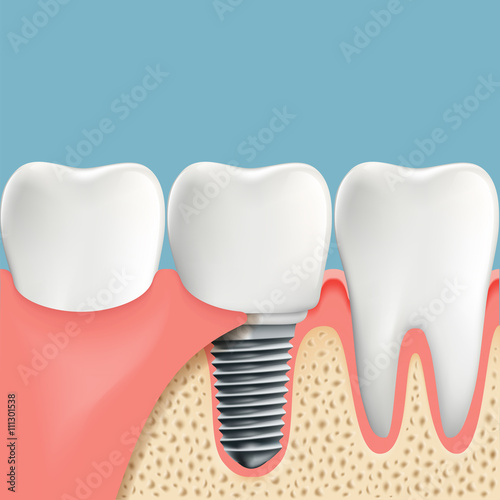 Human Teeth And Dental Implant Anatomy Of The Oral Cavity Stoc