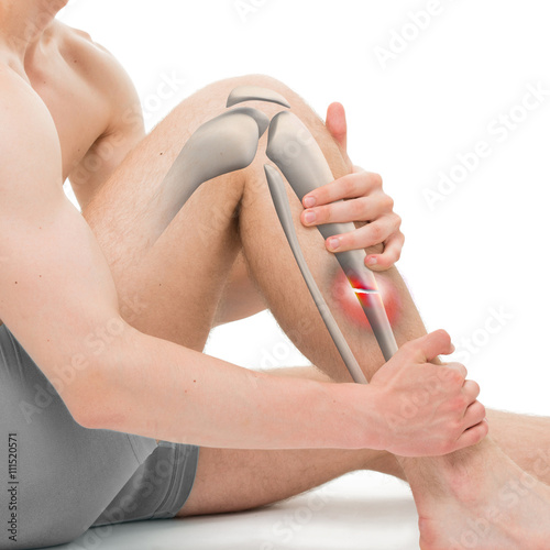 Fotografía  Transverse Fracture of the Tibia - Leg Fracture 3D illustration