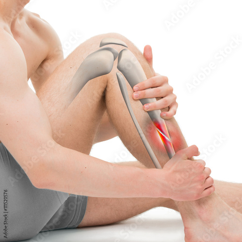 Obraz na płótnie Oblique Fracture of the Tibia - Leg Fracture 3D illustration