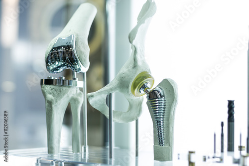 Fotografiet  Modern knee and hip prosthesis made by cad engineer and manufactured by 3d print