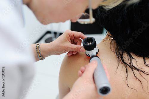 Fotografie, Obraz  melanoma diagnosis. the doctor examines the patient's mole