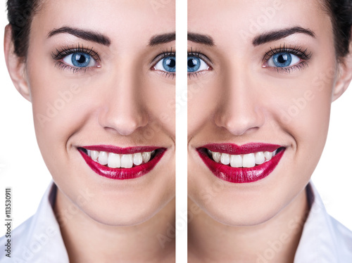 Lips before and after filler injections #113530911