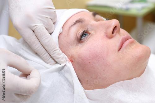 Fotografie, Obraz  Postup lifting obličeje chirurgie.