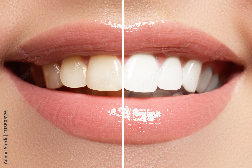 Photo  Perfect smile before and after bleaching