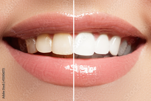 Fototapeta  Perfect smile before and after bleaching