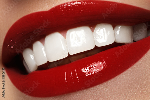 Fotografija  Perfect smile after bleaching. Dental care and whitening teeth