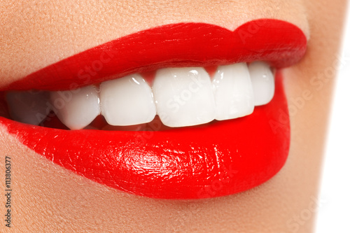 Photo  Perfect smile after bleaching