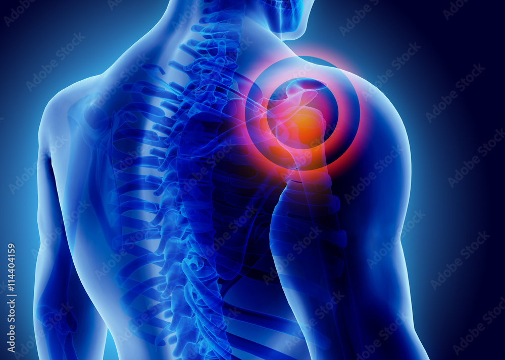 Fototapeta 3D Illustration of shoulder painful.