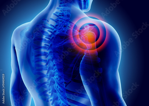 Fotografie, Obraz  3D Illustration of shoulder painful.