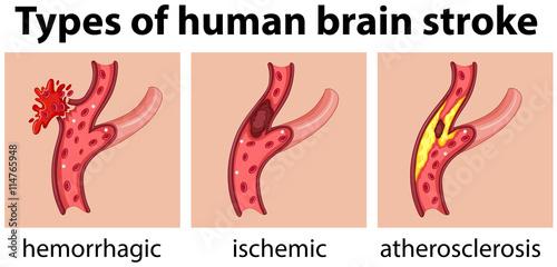 Fotografía Types of human brain stroke