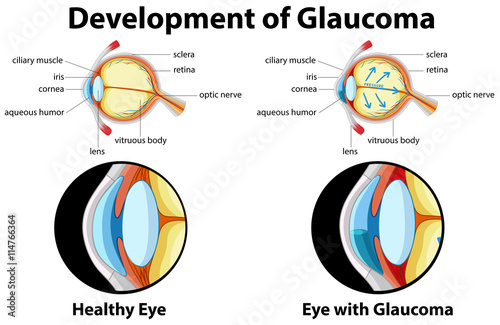 Cuadros en Lienzo  Diagram showing development of glaucoma