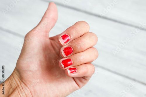 Valokuva  Ugly nails with a bare red varnish