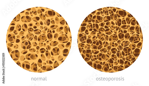 Fotografía  Bone spongy structure