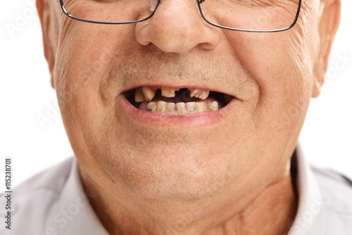 Mouth of a senior with broken teeth Canvas Print