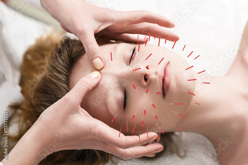 Woman undergoing acupuncture treatment Wallpaper Mural