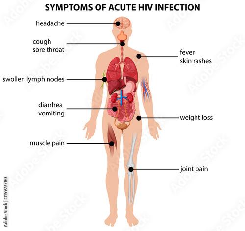 Fototapeta  Diagram showing symptoms of acute HIV infection