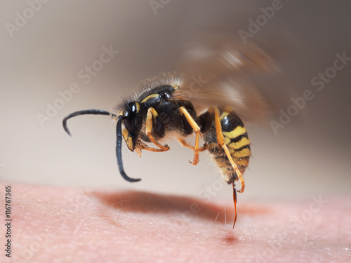 Spoed Foto op Canvas Macrofotografie Wasp sting pulls out of human skin. macro