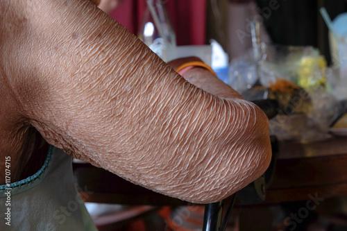 Fotografia, Obraz  old women skin - wither arm