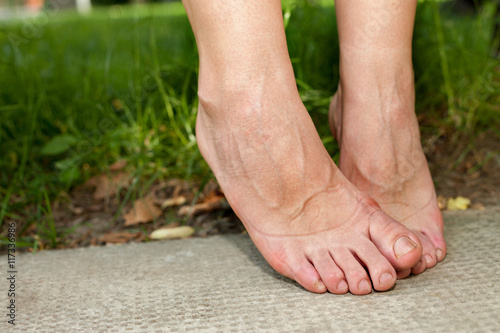 Swollen ankles and swollen feet Fototapeta