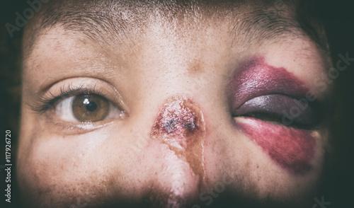 Fényképezés  Battered woman with monocle