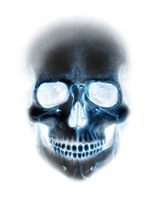 Scary X-ray Blue Neon Skull On White