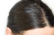 canvas print picture - Fettige Haare, Schuppen und juckende Kopfhaut