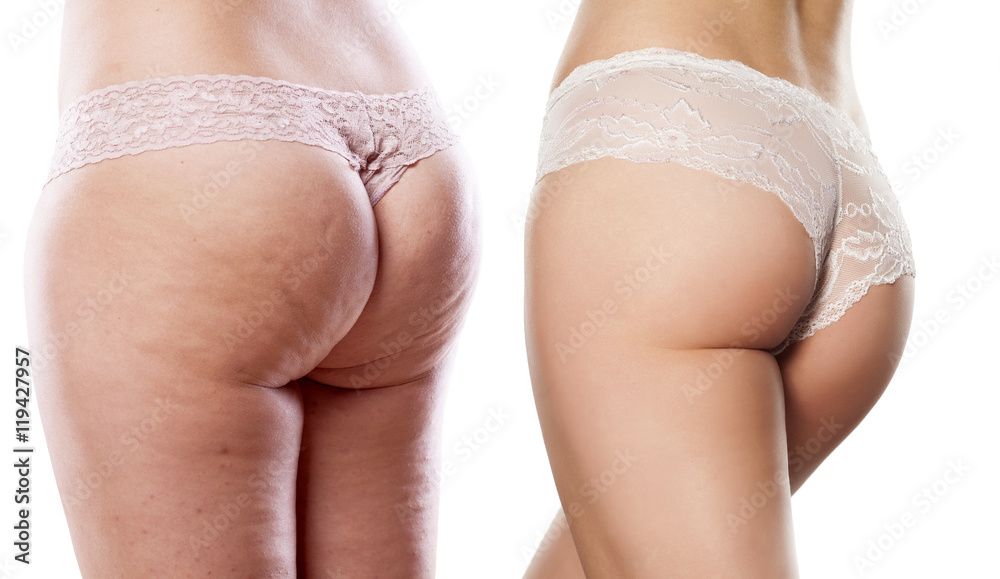 Fototapety, obrazy: comparison of two women buttocks with and without cellulite