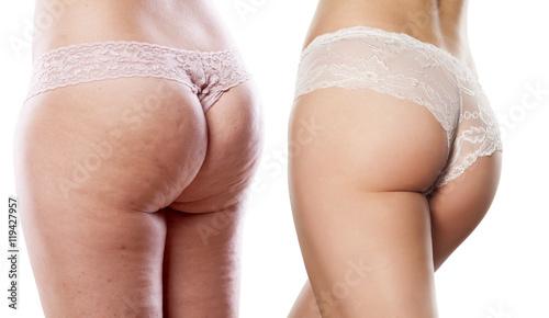Zdjęcie XXL porównanie dwóch pośladków kobiet zi bez cellulitu