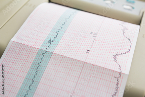 Fényképezés  Printing of cardiogram report coming out from Electrocardiograph in labour ward