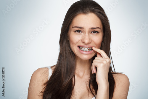 Fotografia  Face of a young woman with braces on her teeth