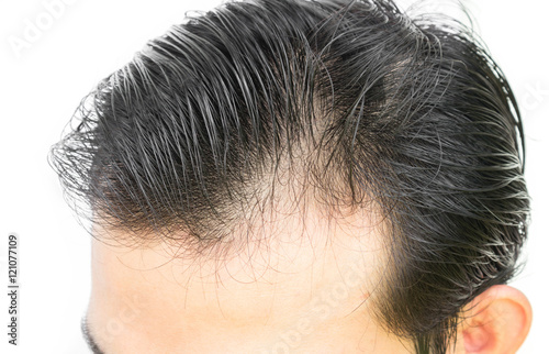 Vászonkép  Young man serious hair loss problem for hair loss concept