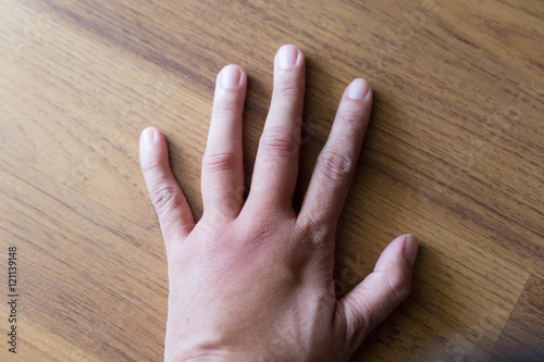 swollen hand from wasp sting Fototapeta