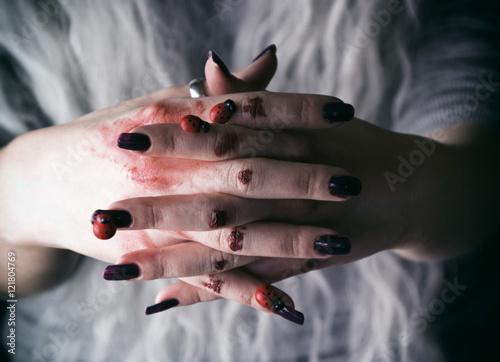 Fotografie, Obraz  Manos de una mujer joven con heridas y sangre seca
