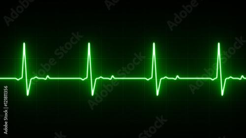 Fotografie, Tablou  EKG Heart Line